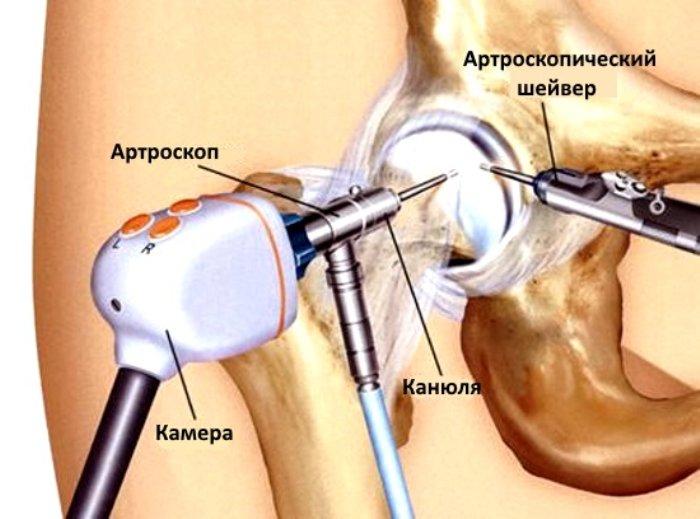 Артроскопические доступы к тазобедренному суставу растяжение сустава большого пальца руки
