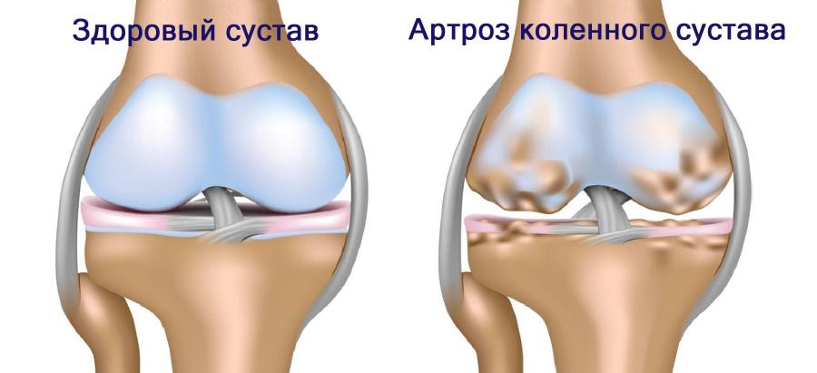 Основы реабилитаци артрозов крупных суставов нормы подвижности в суставах